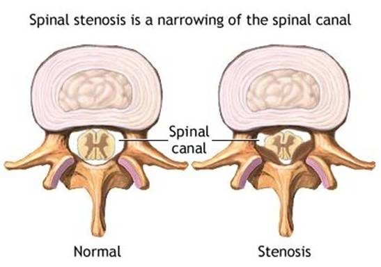La stenose Spinale Cervicale